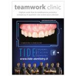 Digitale work flow in riabilitazione protesica complessa in paziente con severa usura dentale