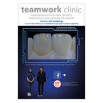 Applicazione clinica della ceratura diagnostica convenzionale VS digitale (Tecnica AFG Modelling) in un caso clinico per la riabilitazione del settore antero-superiore